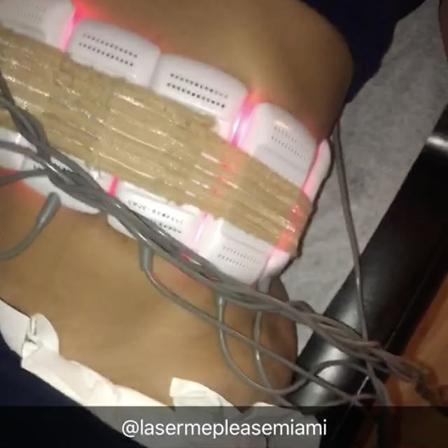 Getting a even smaller waist burning these fat cells that even working out can't fix sometimes!  thank you and s/o @lasermepleasemiami if your in Miami or visiting make sure you come visit @lasermepleasemiami 🔥🔥